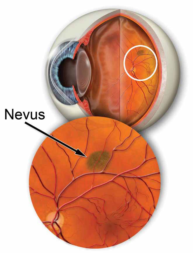 Pigmented Retinal Lesions & Choroidal Nevus