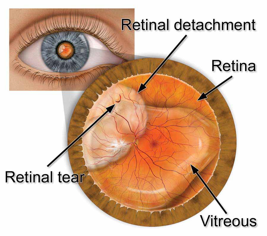 Retinal Tears & Retinal Detachment